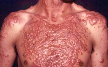 acne FULMINANTE