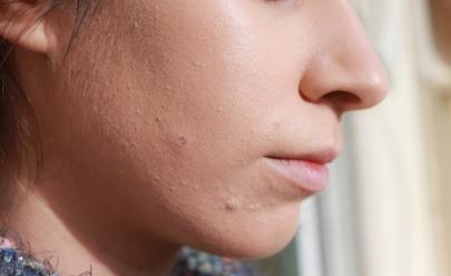 Maquiagem X Acne