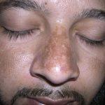 Melasma-Tratamento-Laser-Spectra-Elektra-Vektra-Dr-Alexandre-Lima-Dermatologista-Belo-Horizonte-BH-03-150x150