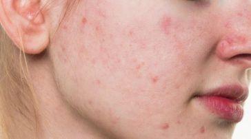 Rosto manchado pós acne