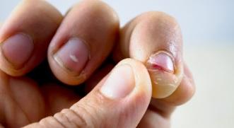 o que causa roer unhas